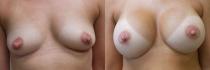 breastaug72618-1