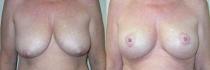 breastlift-aug2