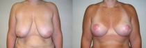 breastlift3