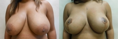 15388breast-lift-with-reduction