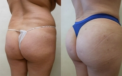 13598-fat-transfer-to-buttocks
