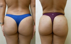14439-fat-transfer-to-buttocks