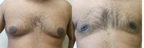 gynecomastia-1
